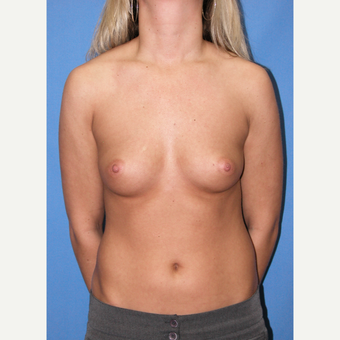 25-34 year old woman treated with Breast Implants before 3100375