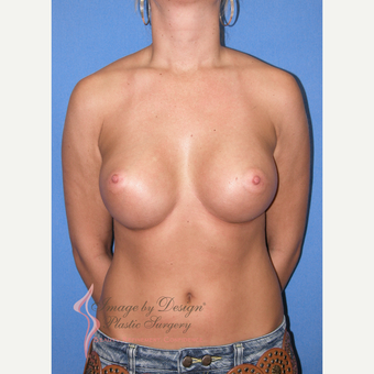 25-34 year old woman treated with Breast Implants after 3100375