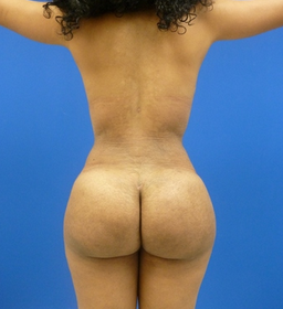 23 y.o. female - Liposuction and fat transfer to buttocks & hips - 1150 cc per side after 768946