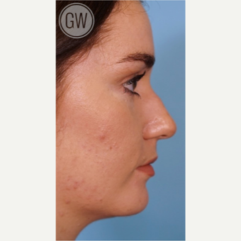 18-24 year old woman treated with Rhinoplasty before 3473463