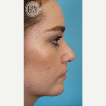 18-24 year old woman treated with Rhinoplasty after 3473463