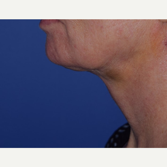 55-64 year old woman treated with laser-assisted Neck Lift after 3638982