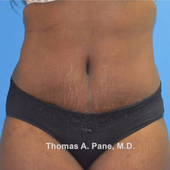 35-44 year old woman treated with Tummy Tuck after 3364806