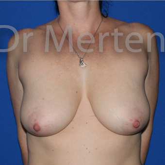 Breast Reduction before 3681348