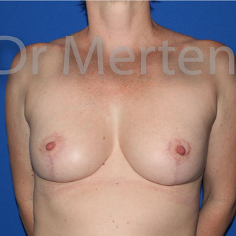 Breast Reduction after 3681348