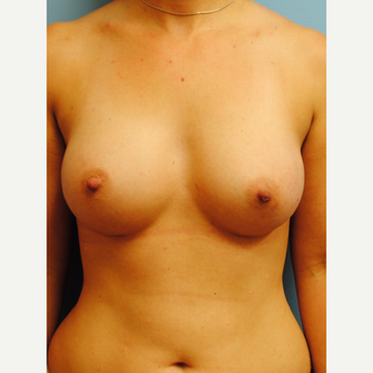 18-24 year old woman treated with Breast Augmentation after 2990250