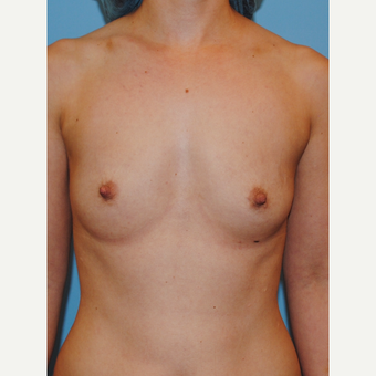 18-24 year old woman treated with Breast Augmentation before 2990250