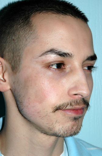 Birthmark Improvement with Chemical Peel and Dermabrasion