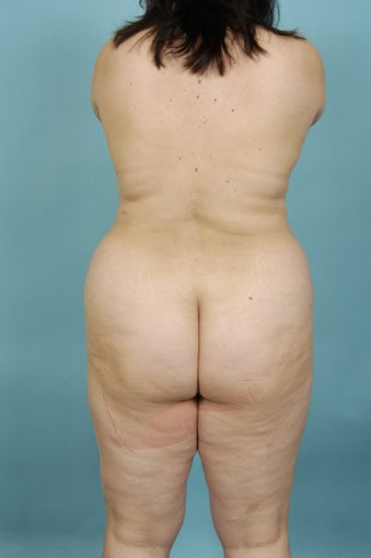 39yo Female, Abdominoplasty; Flankplasty before 1438705
