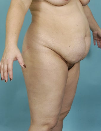 39yo Female, Abdominoplasty; Flankplasty 1438705