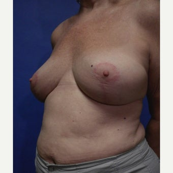 65-74 year old woman treated with ruptured gel Breast Implant Removal and reduction after 2635905