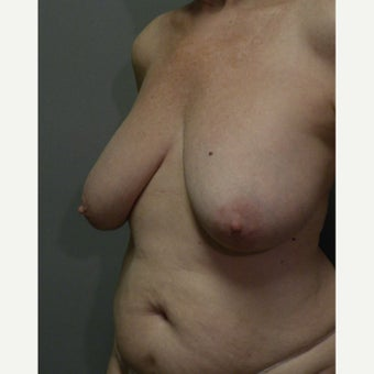 65-74 year old woman treated with ruptured gel Breast Implant Removal and reduction before 2635905