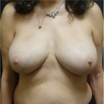 45-54 year old woman treated with Breast Implant Removal after 2961070