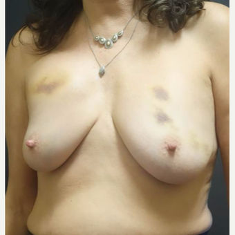 45-54 year old woman treated with Breast Implant Removal before 2961070