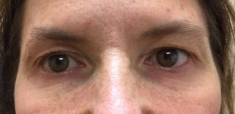 45-54 year old woman treated with Eyelid Surgery before 3367437