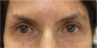 45-54 year old woman treated with Eyelid Surgery after 3367437