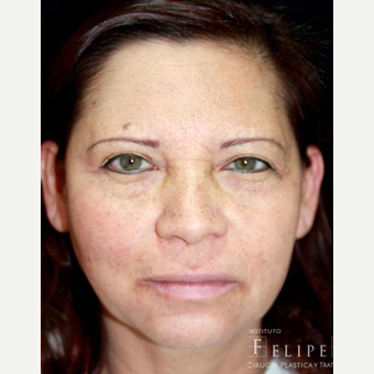 35-44 year old woman treated with Chemical Peel before 3417653