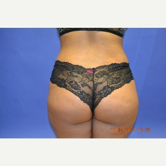 18-24 year old woman treated with Brazilian Butt Lift after 1603770