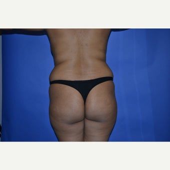18-24 year old woman treated with Brazilian Butt Lift before 1603770
