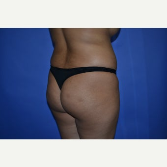 18-24 year old woman treated with Brazilian Butt Lift 1603770