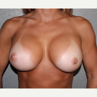 Breast Implant Revision after 3252813