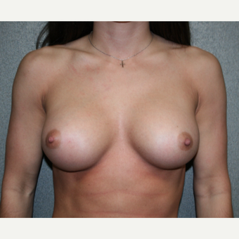 Breast Implant Revision before 3252813
