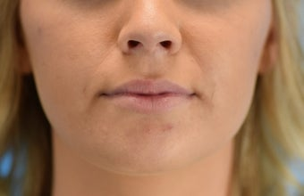 25-34 year old woman treated with Lip Augmentation 3624426