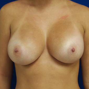 25-34 year old woman treated with Breast Augmentation after 3253734