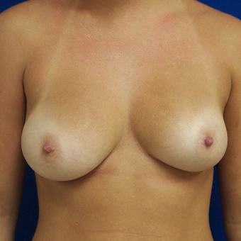 25-34 year old woman treated with Breast Augmentation before 3253734