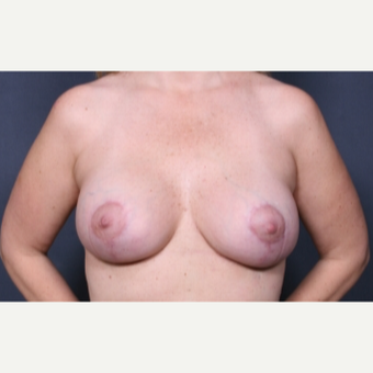 35 year old woman treated with Breast Lift with Implants after 3277951