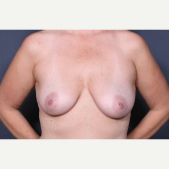 35 year old woman treated with Breast Lift with Implants before 3277951