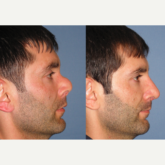35-44 year old man treated with Revision Rhinoplasty after 3522948