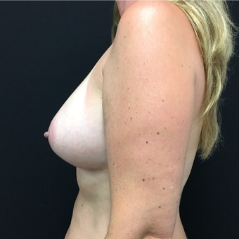 45-54 year old woman treated with Breast Augmentation after 3493776