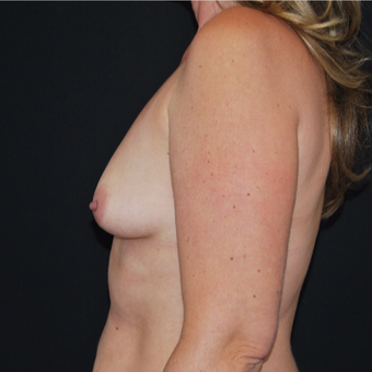 45-54 year old woman treated with Breast Augmentation before 3493776