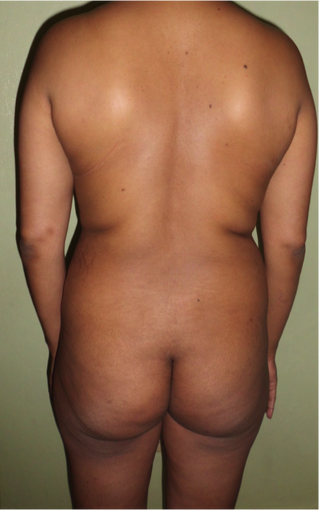 Female treated with Liposuction on back and Fat grafting before 1117633