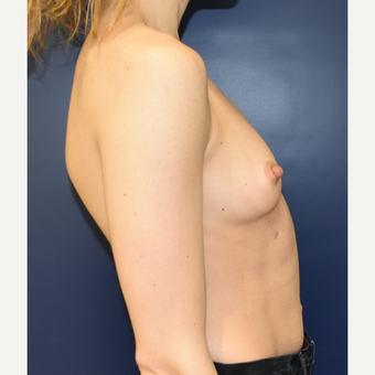 25-34 year old woman treated with Breast Augmentation before 3711166