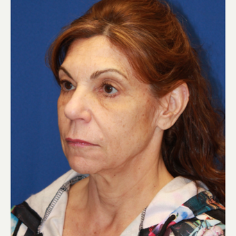 61 year old woman treated with CO2 Laser, Face/neck lift, fat transfer, Upper eyelids before 3320557