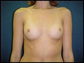 Breast Augmentation before 470231