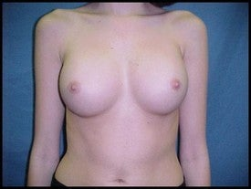 Breast Augmentation after 470231