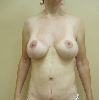 55-64 year old woman treated with Mommy Makeover after 1650192