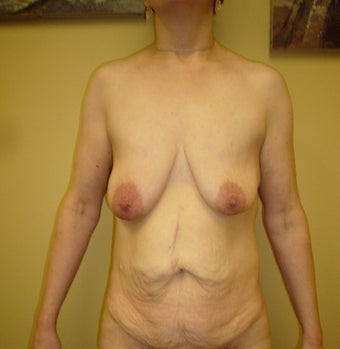55-64 year old woman treated with Mommy Makeover before 1650192
