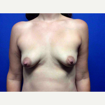 25-34 year old woman treated with Breast Augmentation before 3019006
