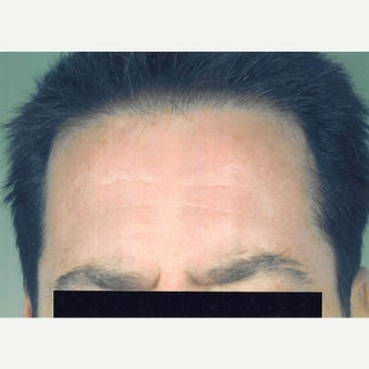 Age spot removal after 1642594