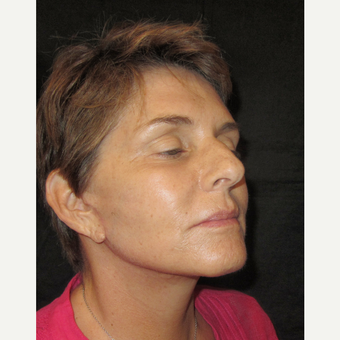 55-64 year old woman treated with Facelift after 3320734