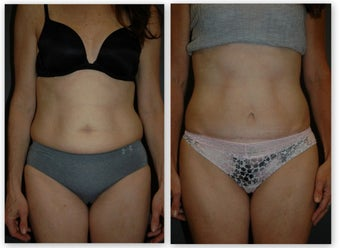 Abdominoplasty with umbilical float, (no incision around belly button) 881436