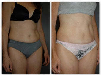 Abdominoplasty with umbilical float, (no incision around belly button) after 881436