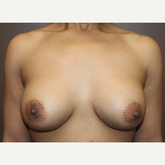 25-34 year old woman treated with Breast Implants after 3423829