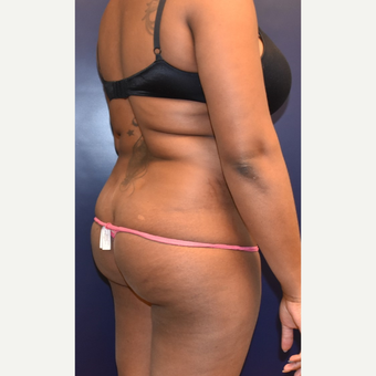 25-34 year old woman treated with Liposuction before 3344455