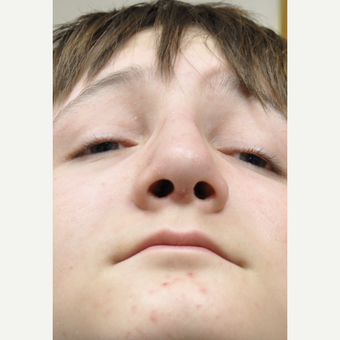 17 or under old boy treated with Rhinoplasty after 3325166