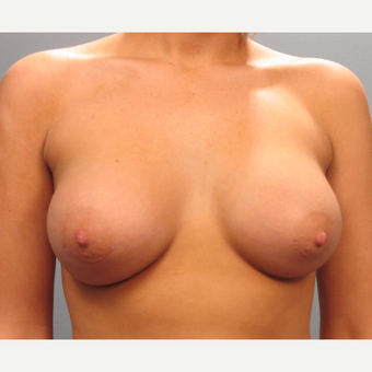 18-24 year old woman treated with Breast Implants after 3293852